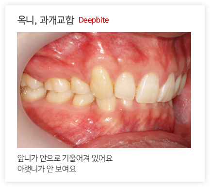 옥니, 과개교합 Deepbite