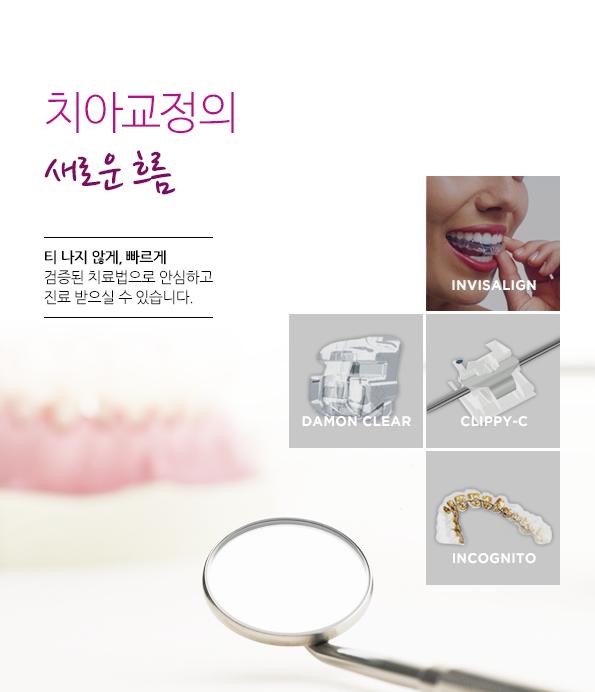 치아교정의 새로운 흐름